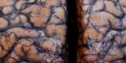 Moždani poremećaji i kod ljudi s blagim simptomima Covida-19, posljedice dugoročne | Domoljubni portal CM | Zdravlje
